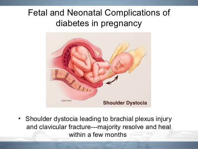 gestational-diabetes-mellitus-13-638